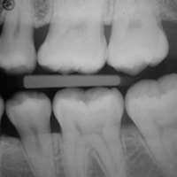 Digital x-rays are used as part of our general dentistry exams