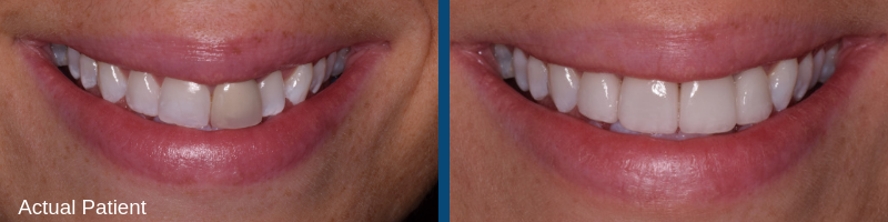 Before and after of actual teeth whitening patient of Kidder Dental.