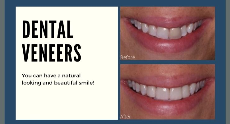 Dental Veneers - You can have a natural looking and beautiful smile.